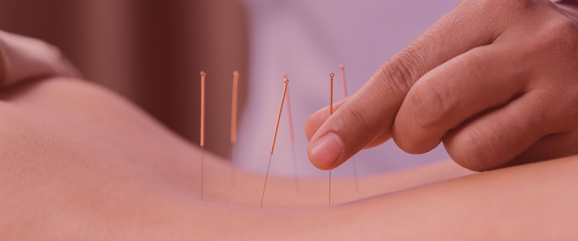 acupuncture treatment Austin